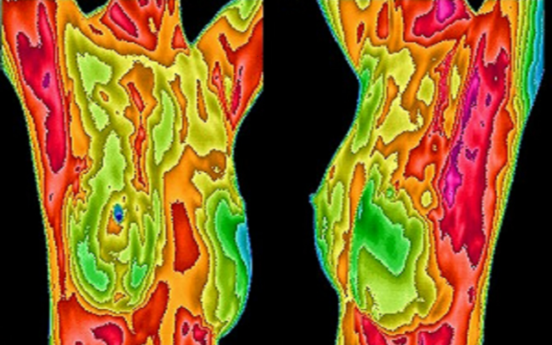 Thermal Imaging for Breast Screening – A Review